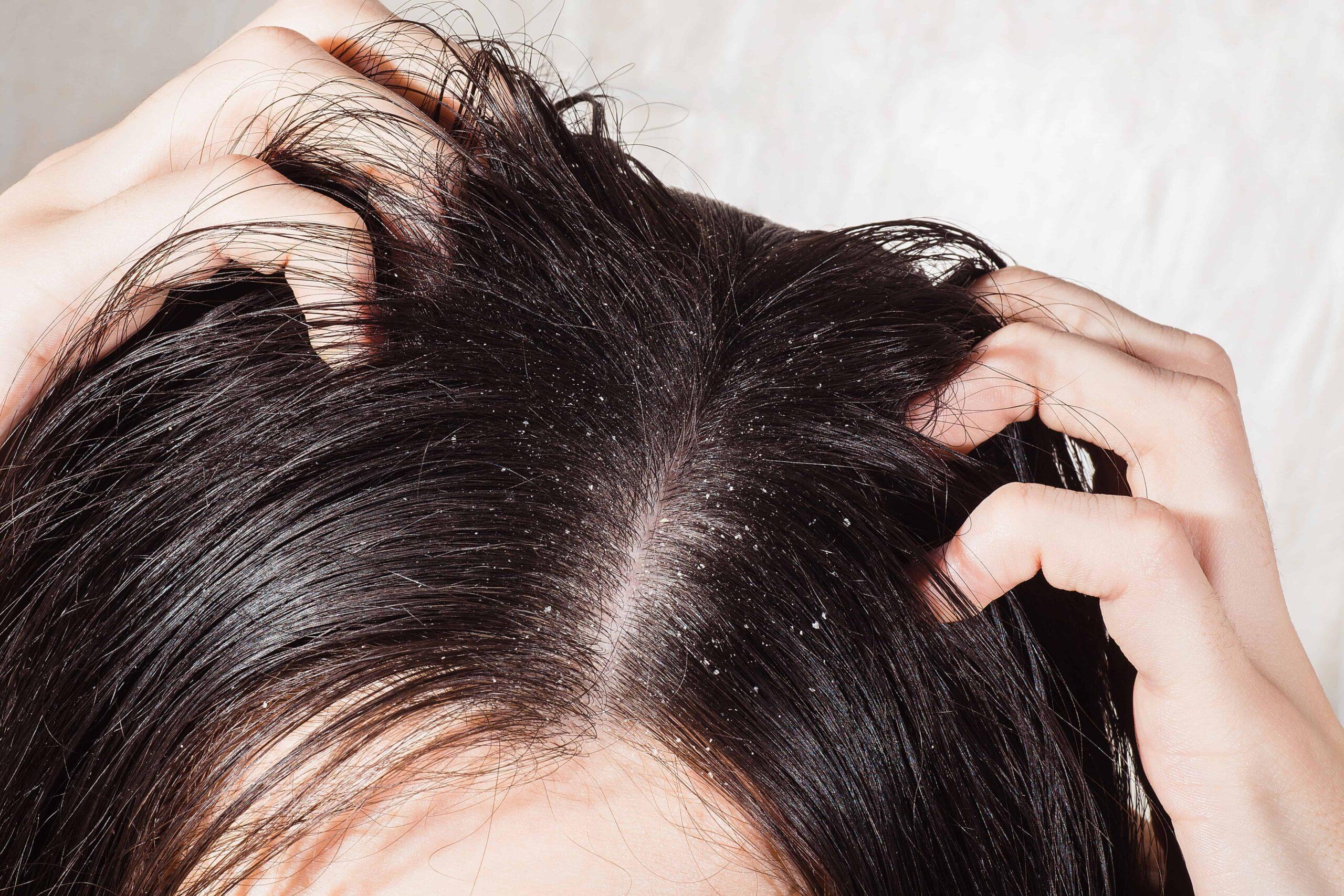 Kopfhaut-mit-Schuppen-scaled
