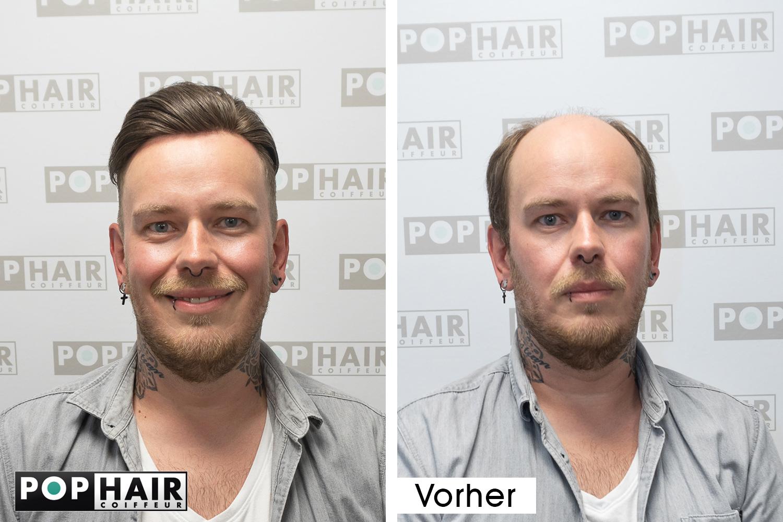ContactSkin-Haarersatz-vorn-voher-nachher